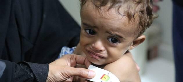 Un niño recibe tratamiento por malnutrición en Hajjah, Yemen. / ONU, PMA, Abeer Etefa,