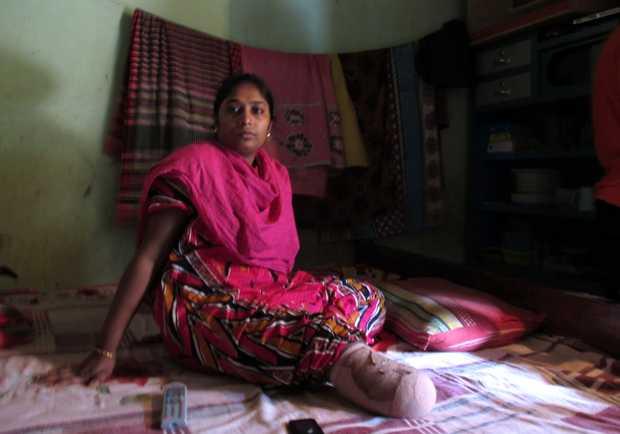 <p> Roxana, de 25 a&ntilde;os, era costurera y perdi&oacute; la parte inferior de la pierna. / N. G., El Pa&iacute;s</p> ,